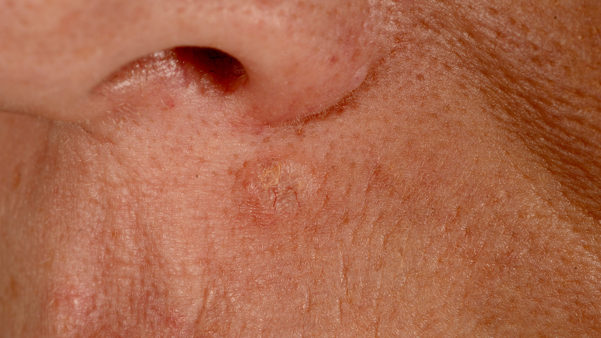hudkræft symptomer billeder
