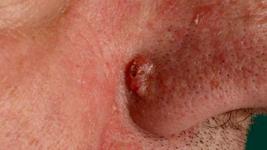 hudkræft på næsen