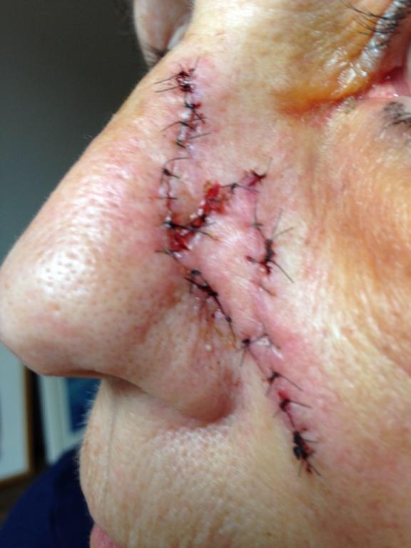 Umiddelbart efter operationen. Trådene fjernes 7-10 dage efter operationen.
