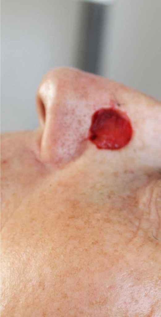 Under operationen: Fjernelse af Basalcellekarcinom