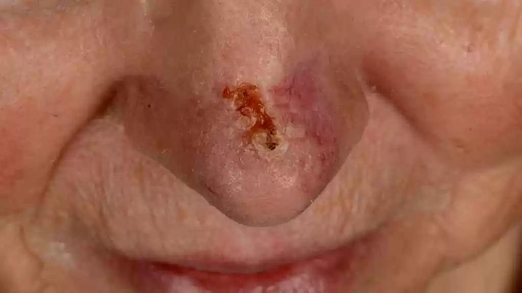 basalcellscancer ansikt