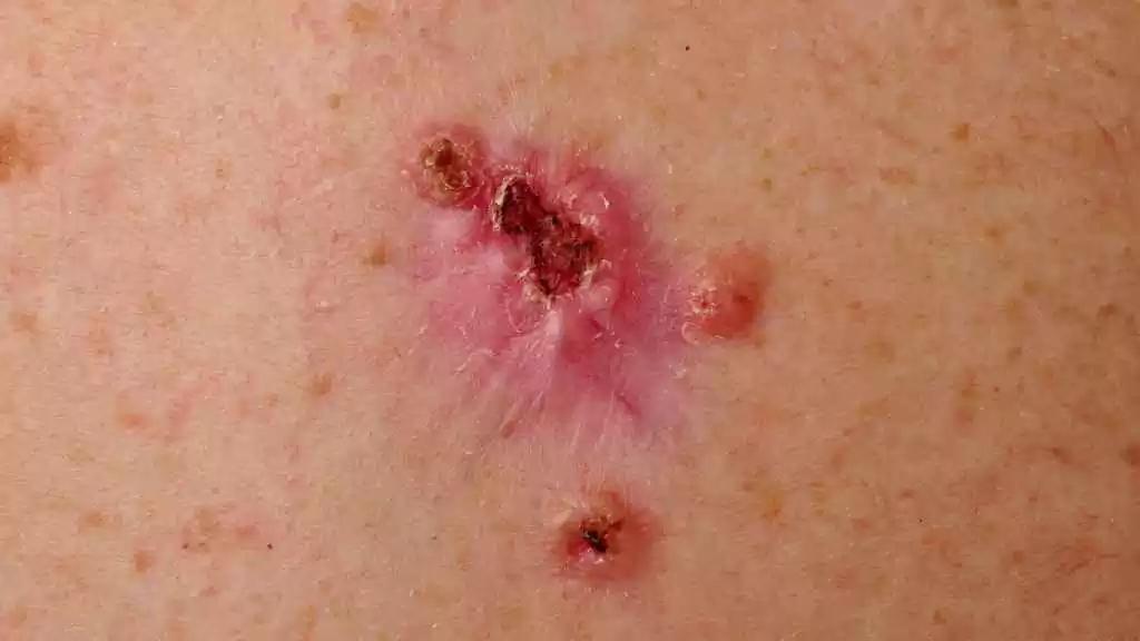 Hudkræft udseende